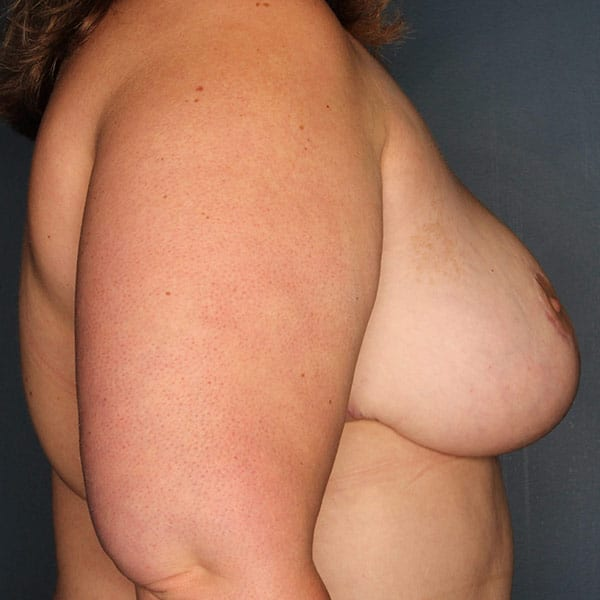 Breast Reduction Patient 3919 After - 3