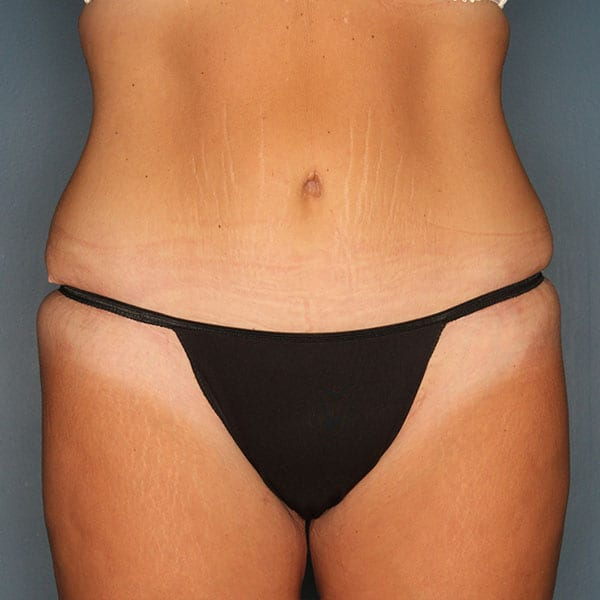 Abdominoplasty Patient 19 After