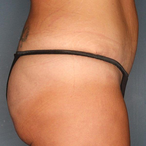 Abdominoplasty Patient 19 After - 3