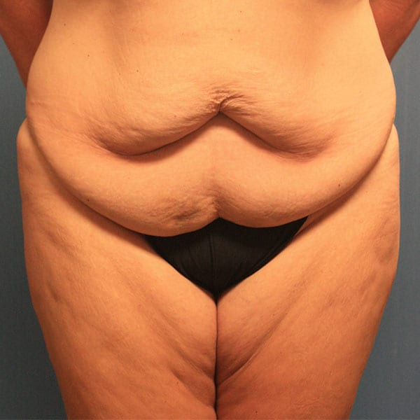 Abdominoplasty Patient 19 Before