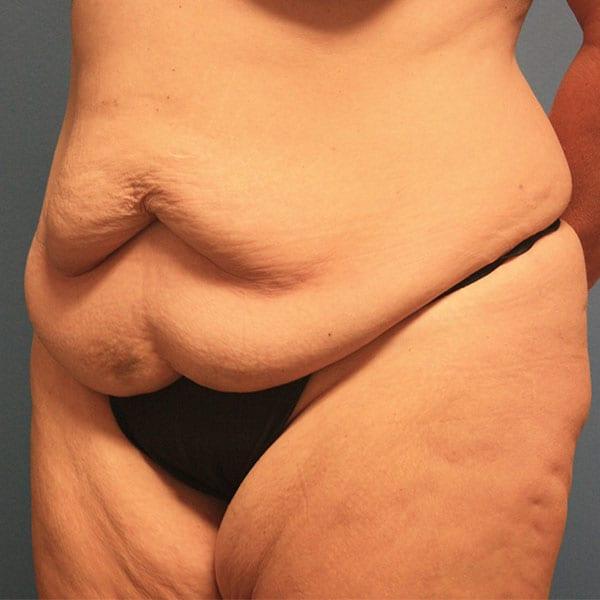 Abdominoplasty Patient 19 Before - 2