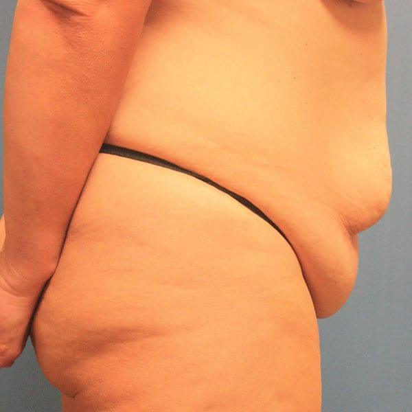 Abdominoplasty Patient 19 Before - 3