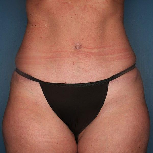 Abdominoplasty Patient 20 After