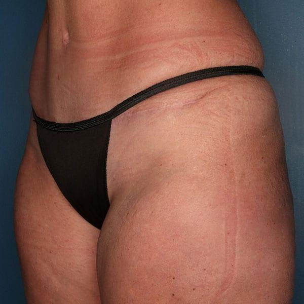 Abdominoplasty Patient 20 After - 2