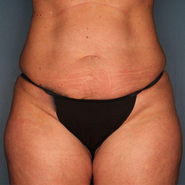 Abdominoplasty Patient 20 Before