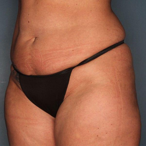 Abdominoplasty Patient 20 Before - 2