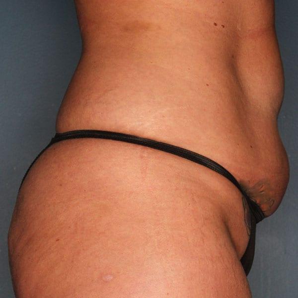 Abdominoplasty Patient 20 Before - 3