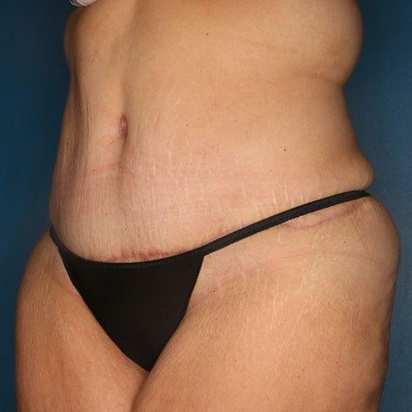 Abdominoplasty Patient 21 After - 2