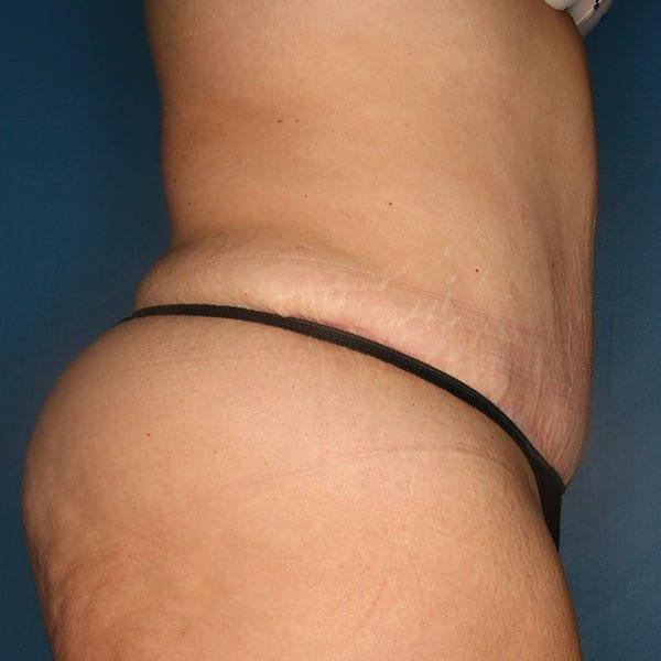 Abdominoplasty Patient 21 After - 3