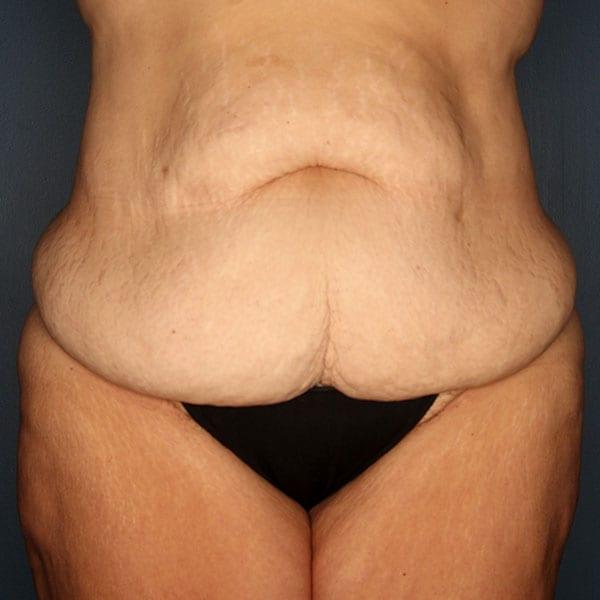 Abdominoplasty Patient 21 Before