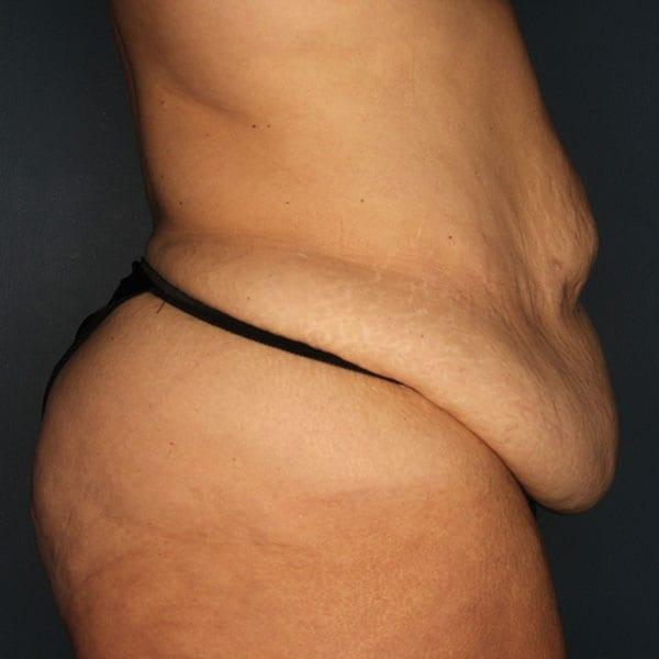 Abdominoplasty Patient 21 Before - 3