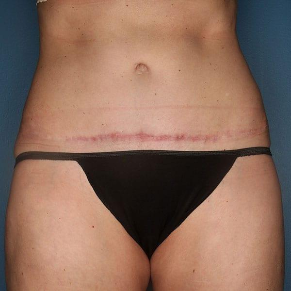Abdominoplasty Patient 22 After