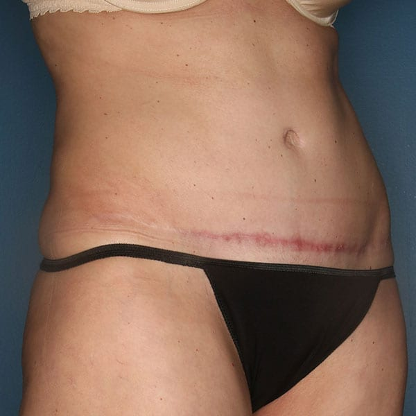 Abdominoplasty Patient 22 After - 2