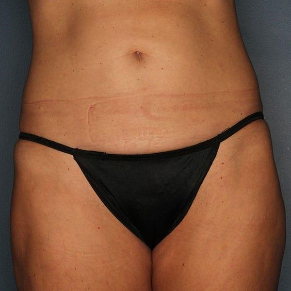 Abdominoplasty Patient 22 Before