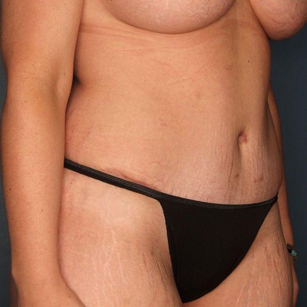 Abdominoplasty Patient 23 After - 3