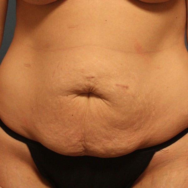 Abdominoplasty Patient 23 Before