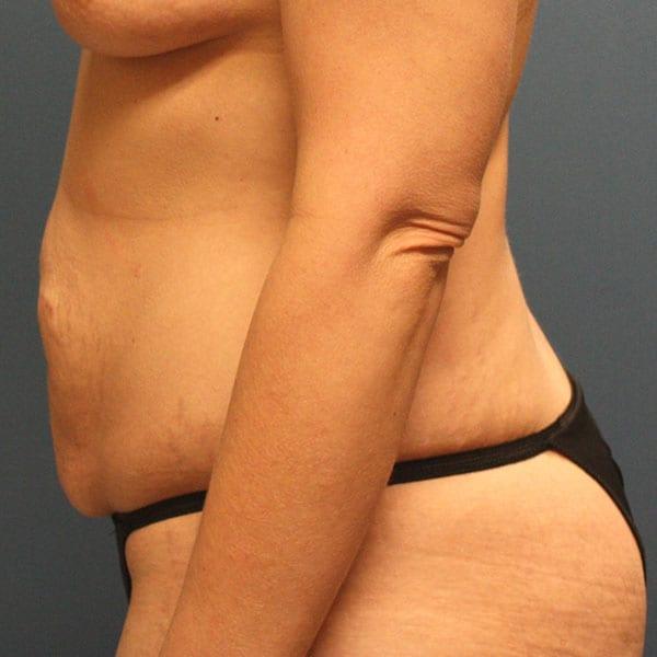 Abdominoplasty Patient 23 Before - 2