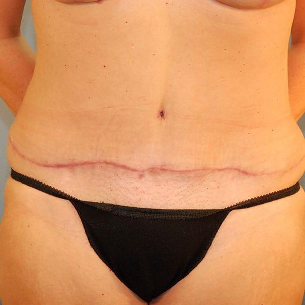 Abdominoplasty Patient 24 After