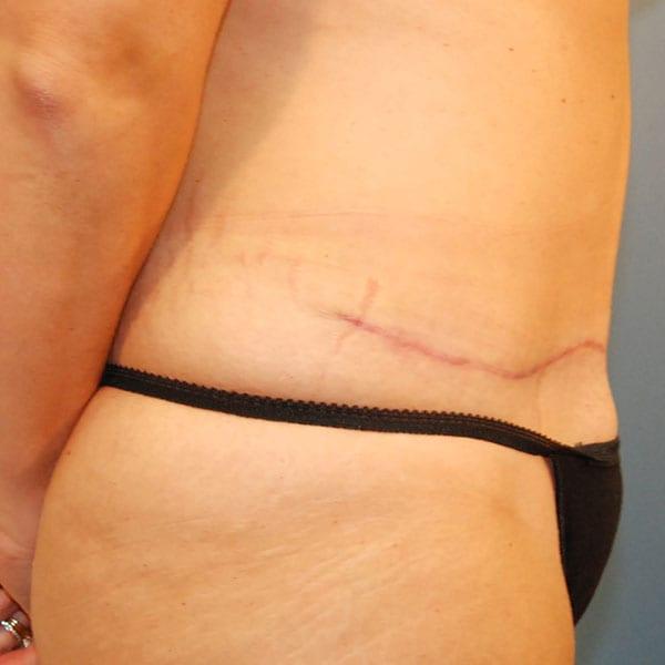 Abdominoplasty Patient 24 After - 2