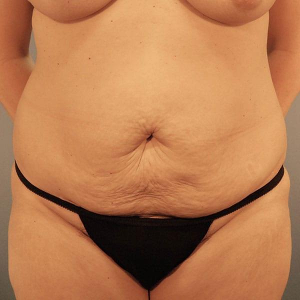 Abdominoplasty Patient 24 Before