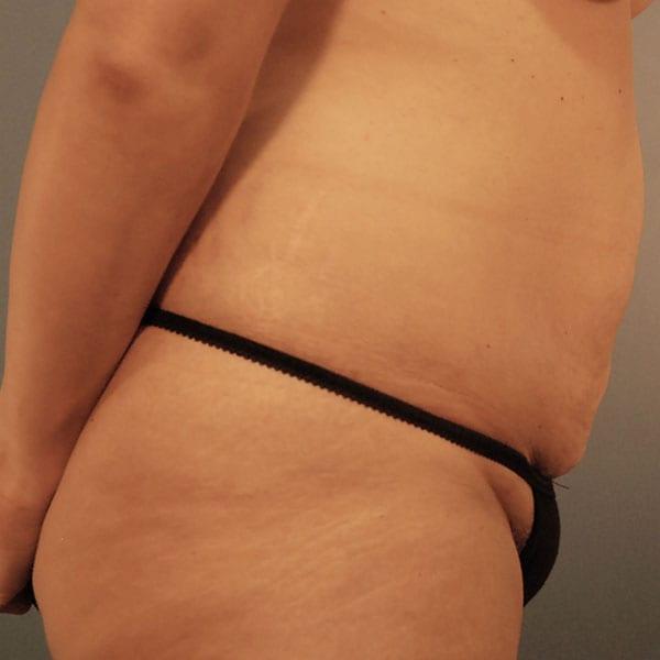 Abdominoplasty Patient 24 Before - 2