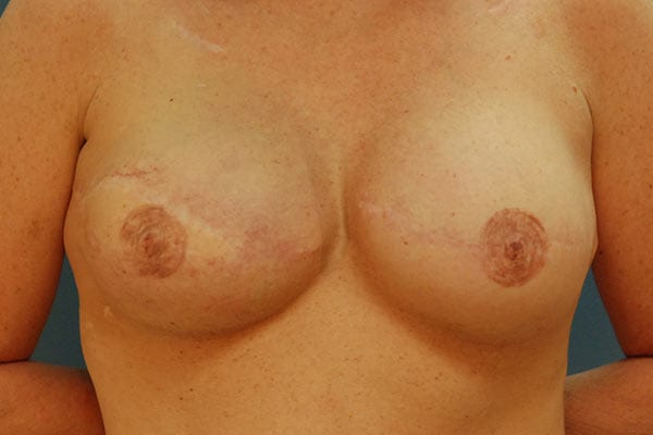 Breast Reconstruction Patient 5619 After - 1