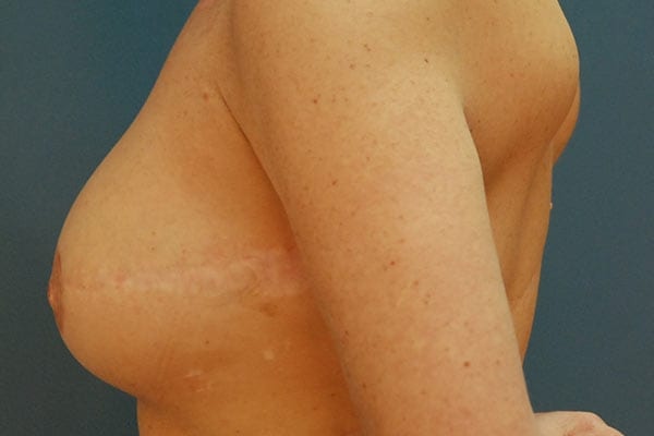 Breast Reconstruction Patient 5619 After - 3