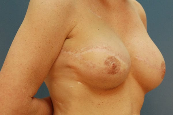 Breast Reconstruction Patient 5619 After - 2