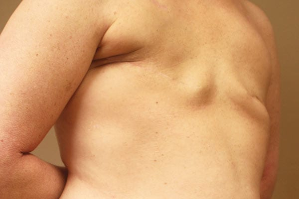 Breast Reconstruction Patient 5619 Before - 2