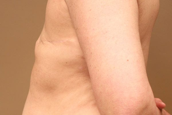 Breast Reconstruction Patient 5619 Before - 3