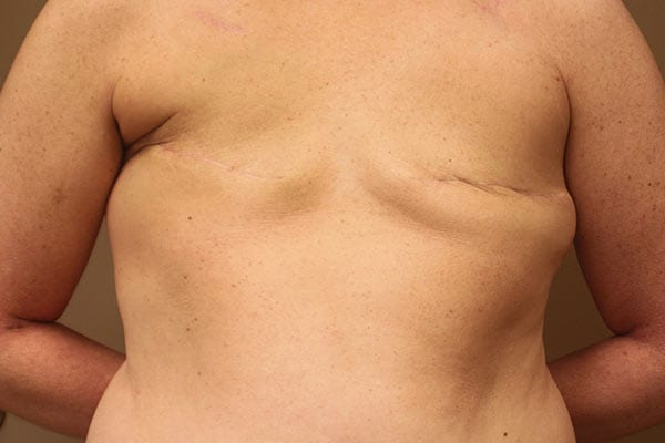 Breast Reconstruction Patient 5619 Before - 1