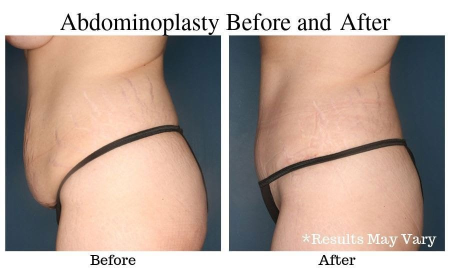 Before and after image showing results of a female patient's tummy tuck surgery in Birmingham, Al.