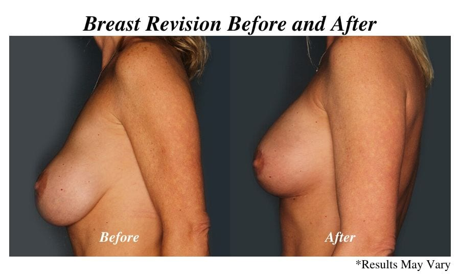 Before and after image showing the results of a woman's breast implant replacement and breast lift performed in Birmingham, AL.
