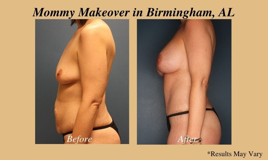 Before and after of Mommy Makeover patient in Birmingham, AL