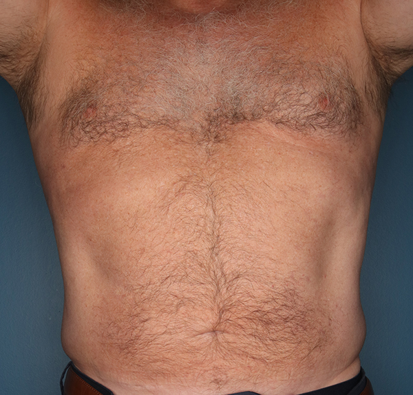 Before And After Liposuction Gallery Birmingham Al Dr Al Cohn