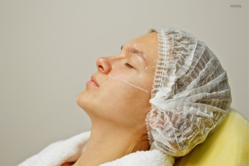 Close up image of woman's face and neck undergoing a cosmetic treatment.