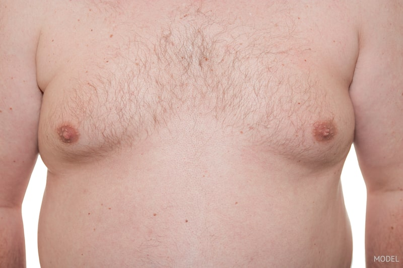 Close-up image of man's chest showing his gynecomastia.